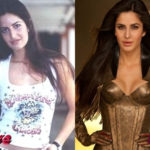 Katrina Kaif Before and After Surgery Procedure 150x150