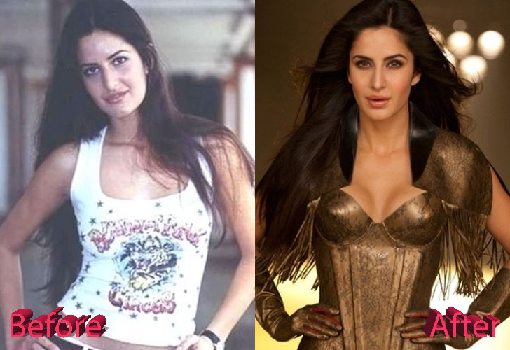Katrina Kaif Before and After Surgery Procedure