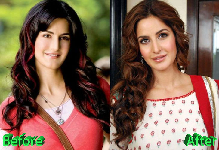 Katrina Kaif Plastic Surgery Before and After