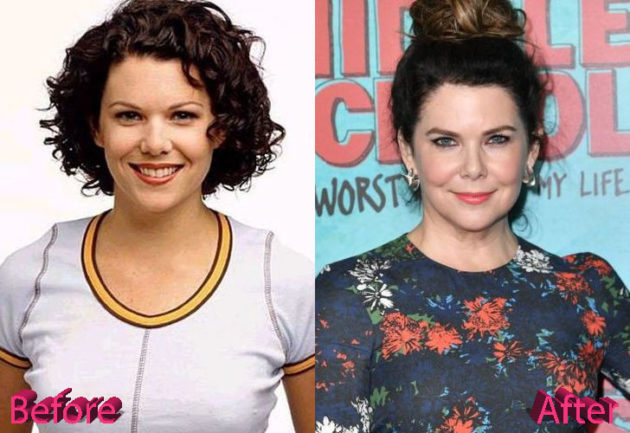 Lauren Graham Before and After Cosmetic Surgery 630x433