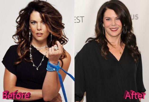 Lauren Graham Before and After Surgery Procedure 630x433