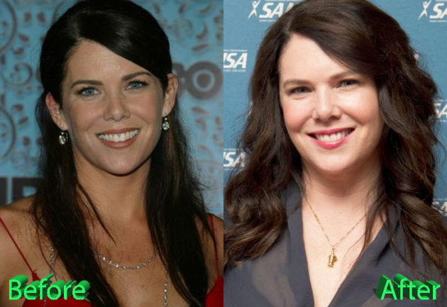 Lauren Graham Plastic Surgery Before and After 630x433