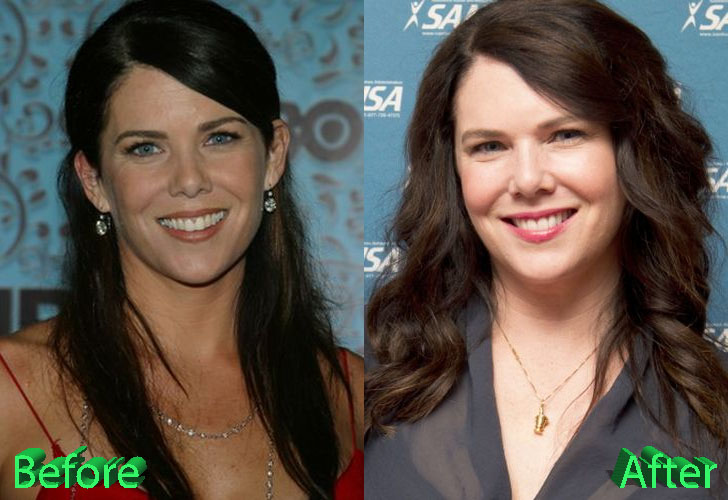 Lauren Graham Plastic Surgery: Less Is More