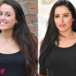 Marnie Simpson Before and After Rhinoplasty Surgery 150x150