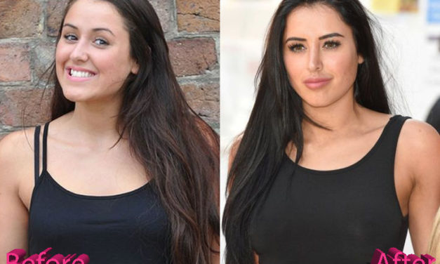 Marnie Simpson Nose Job: A Job Done Right