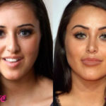 Marnie Simpson Nose Job Surgery Before and After 150x150