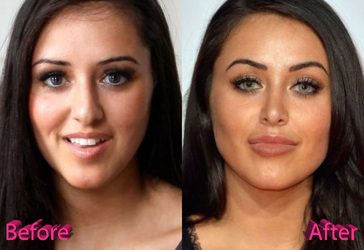 Marnie Simpson Nose Job Surgery Before and After