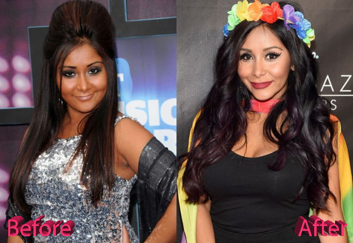 snooki plastic surgery serious changes over six years