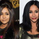 Snooki Before and After Surgery Procedure 150x150