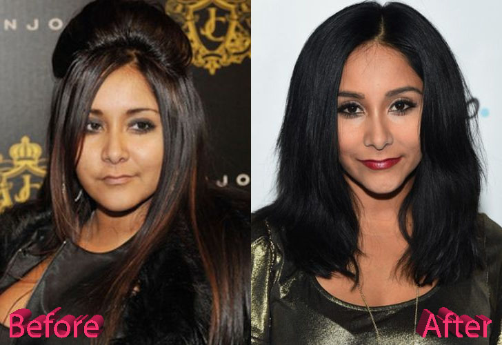 Snooki Plastic Surgery: Serious Changes Over Six Years