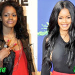 Teyana Taylor Before and After Surgery Procedure 150x150