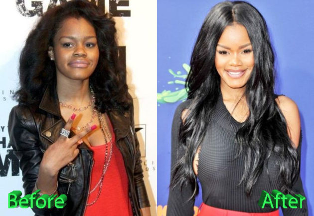 Teyana Taylor Before and After Surgery Procedure 630x433