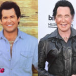 Wayne Newton Before and After Surgery Procedure 150x150
