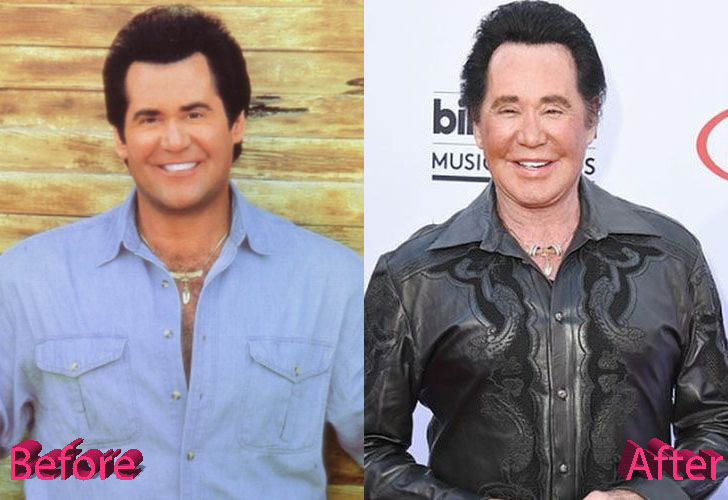 Wayne Newton Before and After Surgery Procedure