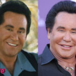 Wayne Newton Plastic Surgery Before and After 150x150