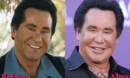 Wayne Newton Plastic Surgery: A Las Vegas Facelift