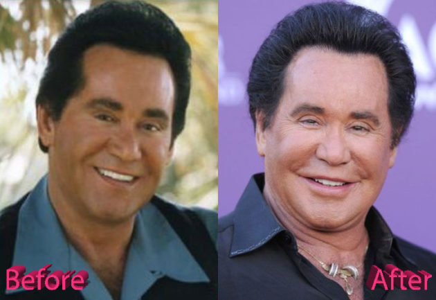 Wayne Newton Plastic Surgery Before and After 630x433
