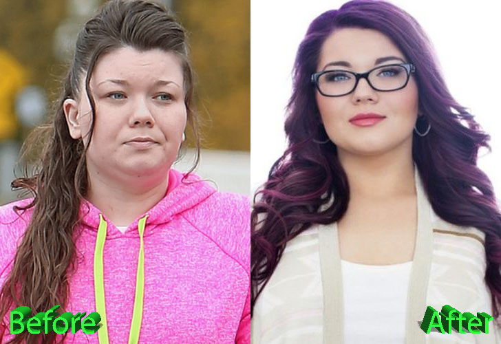 Amber Portwood Before and After Cosmetic Surgery