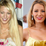 Blake Lively Before and After Nosejob Surgery 150x150