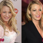Blake Lively Before and After Rhinoplasty 150x150