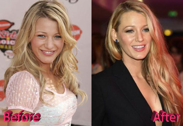 Blake Lively Before and After Rhinoplasty 630x433