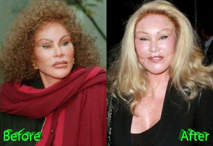 Catwoman Before and After Cosmetic Surgery