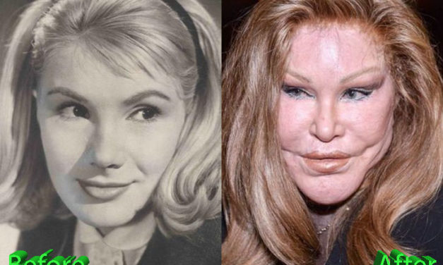 Catwoman Plastic Surgery: From Bad To Worse