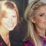Christina El Moussa Before and After Cosmetic Surgery 150x150