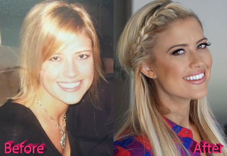 Christina El Moussa Before and After Cosmetic Surgery
