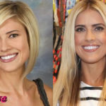 Christina El Moussa Before Cosmetic Surgery Blake Lively Nose