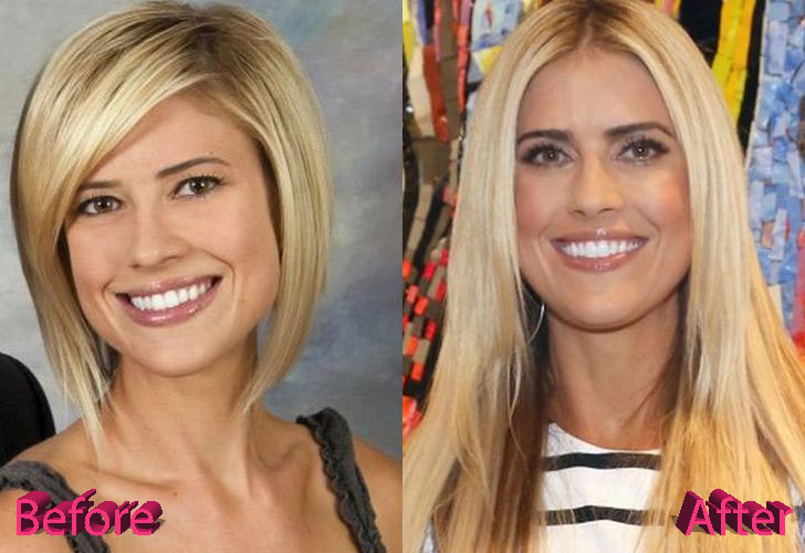 Christina El Moussa Before and After Surgery Procedure