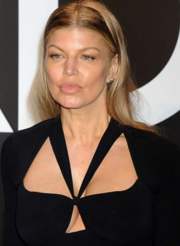 Fergie After Cosmetic Surgery