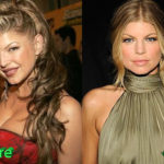 Fergie Before and After Cosmetic Surgery 150x150