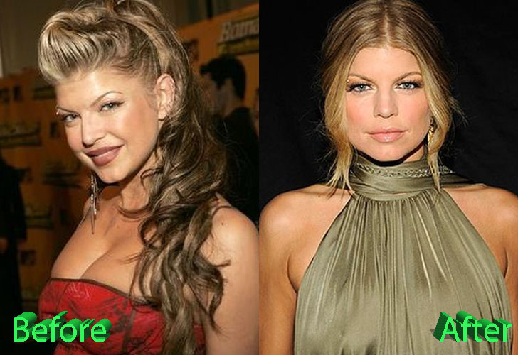Fergie Before and After Cosmetic Surgery