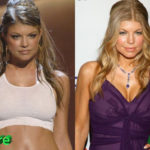 Fergie Before and After Surgery Procedure 150x150