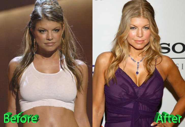 Fergie Before and After Surgery Procedure