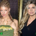 Fergie Plastic Surgery Before and After 150x150