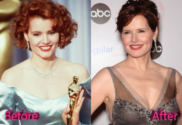 Geena Davis Before and After Cosmetic Surgery 630x433