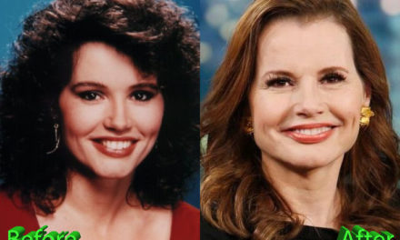 Geena Davis Plastic Surgery: Changes Over The Years