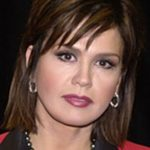 Marie Osmond Before Surgery Procedure 150x150