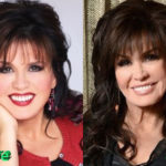 Marie Osmond Before and After Cosmetic Surgery 150x150