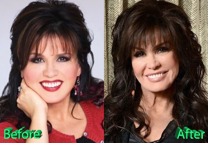 Marie Osmond Before and After Cosmetic Surgery
