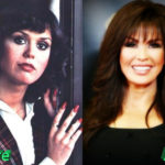 Marie Osmond Before and After Surgery Procedure 150x150