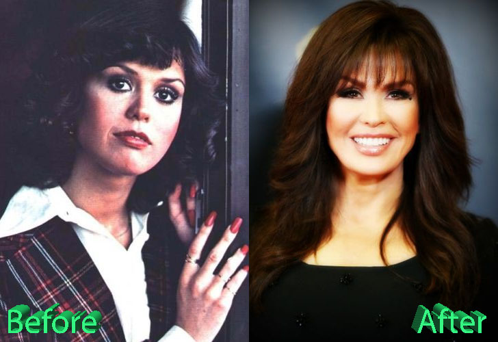Marie Osmond Before and After Surgery Procedure