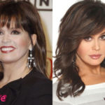 Marie Osmond Plastic Surgery Before and After 150x150