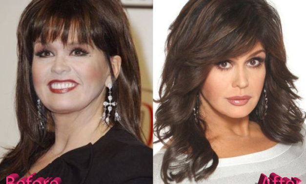 Marie Osmond Plastic Surgery: Marie's Youthful Looks