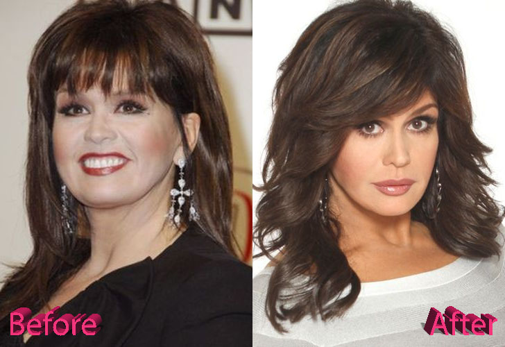 Marie Osmond Bad Plastic Surgery Pictures To Pin On