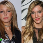 Katie Cassidy Before and After Cosmetic Surgery 150x150