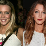 Katie Cassidy Before and After Surgery Procedure 150x150