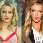 Katie Cassidy Plastic Surgery Before and After 150x150